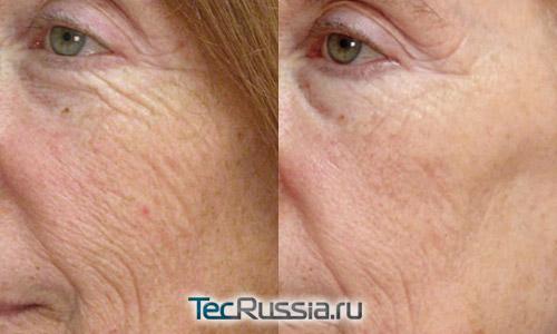 морщины вокруг глаз до и после лазера