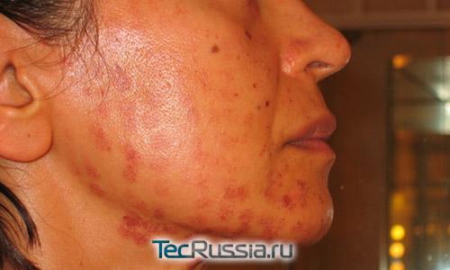 повреждения кожи после процедуры