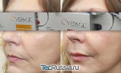 результаты армирования мягких тканей лица филлером Overage Deeper