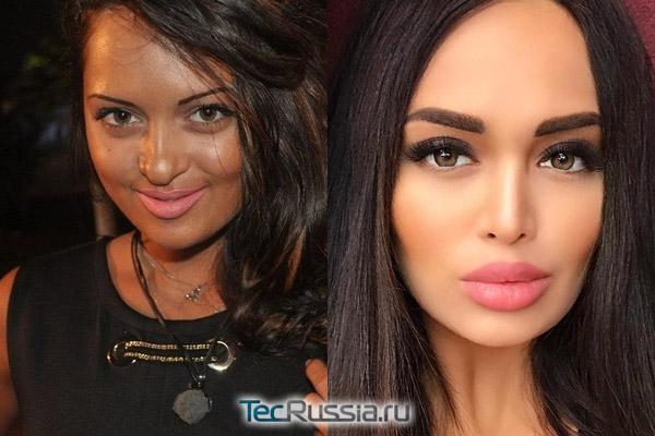 Нита Кузьмина до и после ринопластики