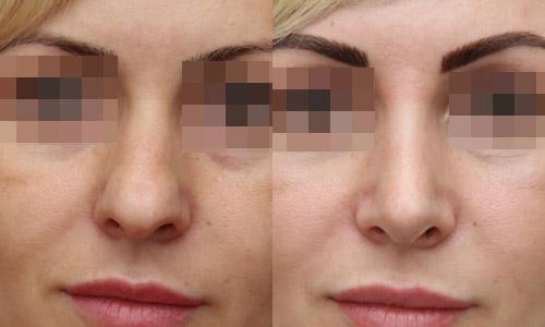 фото до и после ринопластики (хирург – В.С.Григорянц), вид спереди
