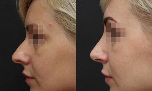 фото до и после ринопластики (хирург – В.С.Григорянц), профиль