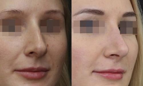 результаты коррекции раздвоенного кончика носа