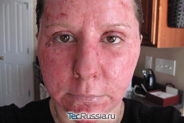 кожа лица через 1 неделю после глубокого лазерного пилинга