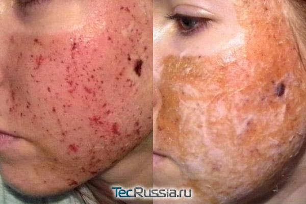 состояние кожи сразу после и через 3 дня после шлифовки