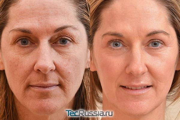 фото до лазерной шлифовки лица и после полного восстановления кожи