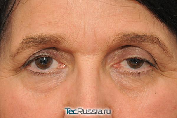Avon лифтинг система для кожи вокруг глаз отзывы