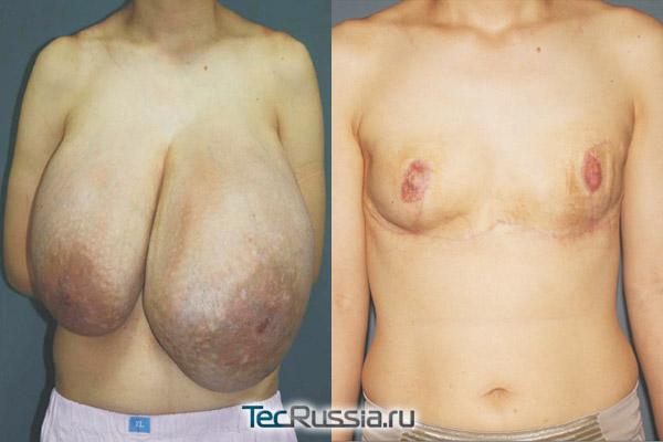 мастэктомия при очень большом размере груди