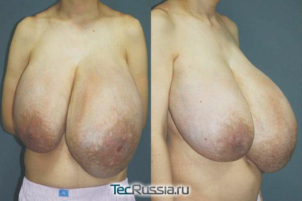 очень большая грудь, тяжелая форма заболевания