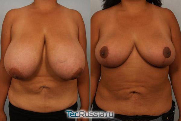 макромастия до и после пластической операции