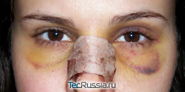 крупные синяки под глазами после ринопластики