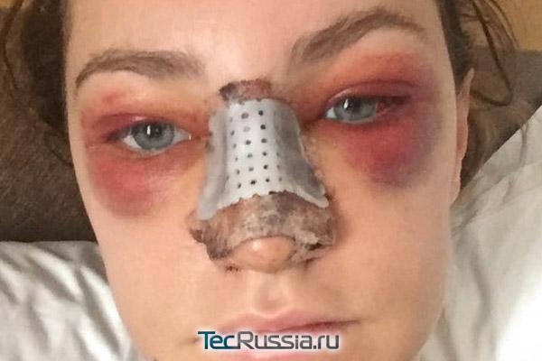 кровоизлияния вокруг глаз на 2-й день после пластики носа
