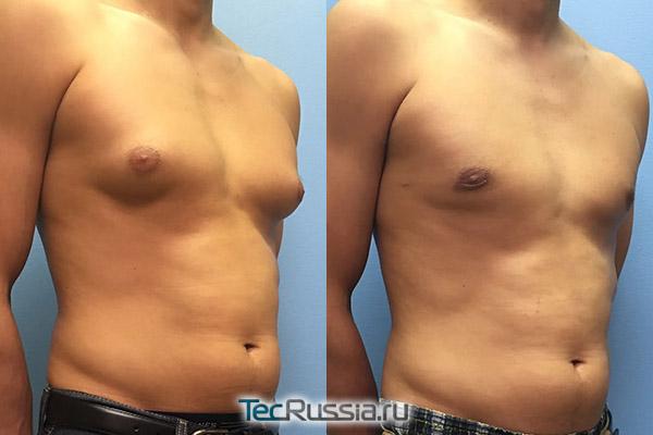 до и после удаления гинекомастии