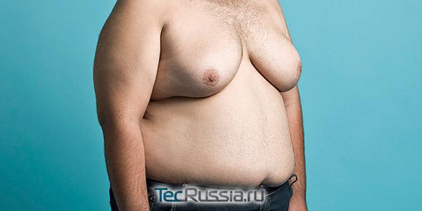 гинекомастия - увеличенная грудь у мужчины