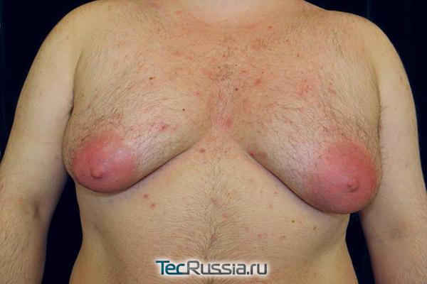 крайняя степень гипертрофии мужских грудных желез