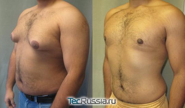 фото до и после операции при гинекомастии, вид сбоку