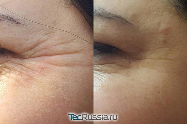 морщины в уголках глаз до и после инъекций ботулакса