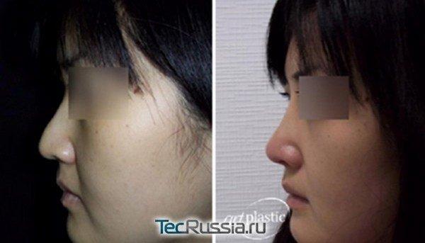 коррекция азиатского носа