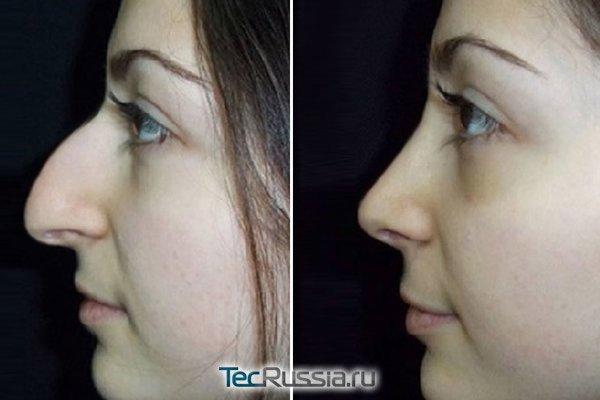 ринопластика кавказского носа
