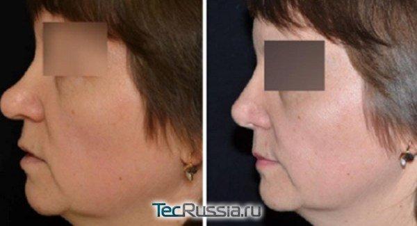 коррекция славянского носа