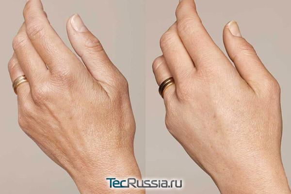 кисти рук до и после биоревитализации