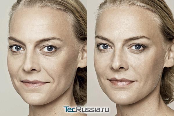биоревитализация лица, фото до и после