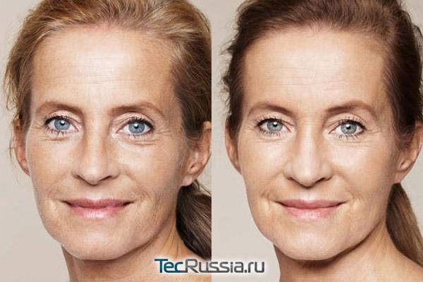 кожа до и после инъекций ревитализантов