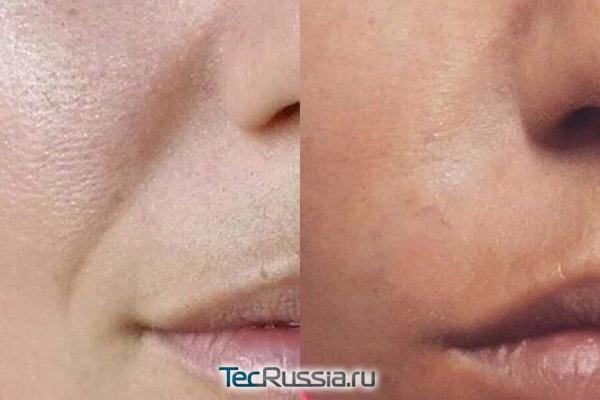 Фото до и после уколов филлера Принцесс Волюм в носогубки