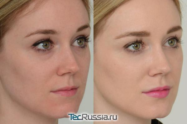 Реденсити 2 для разглаживания носослезной борозды и области вокруг глаз