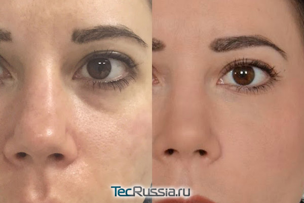 Фото до и после уколов Teosyal под глазами
