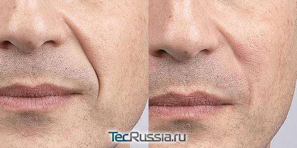 Заполнение складок на лице препаратом Ультра Дип