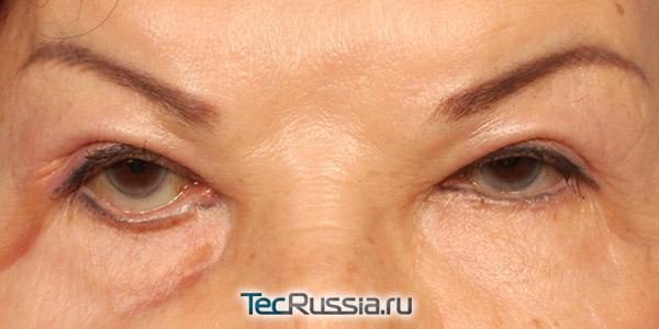 разные размеры глаз и форма глазной щели после блефаропластики