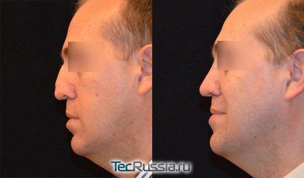 повторная ринопластика у доктора Алексаняна, фото до и после