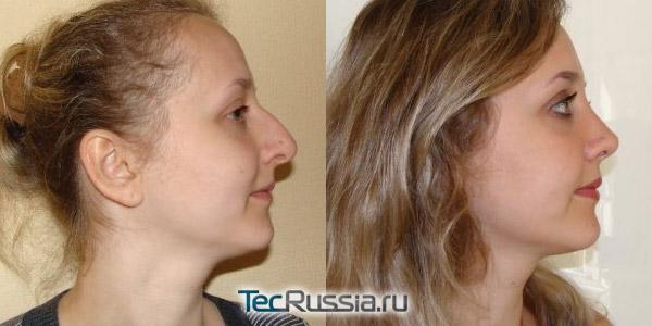 фото до и после пластики носа, хирург – Г.П.Бабаян