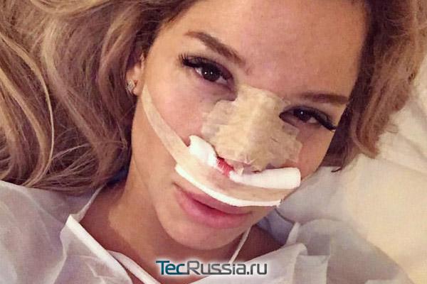 так выглядит гипсовая повязка на носу после ринопластики