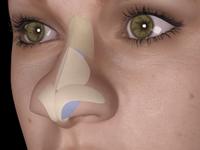 Как исправить кончик носа? Ринопластика для тех, у кого «нос картошкой»