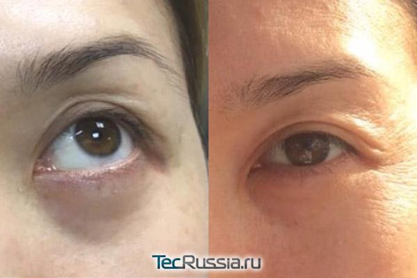 лучший крем от морщин вокруг глаз после 30 лет рейтинг отзывы