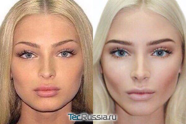 Фото Алены Шишковой до и после пластических операций