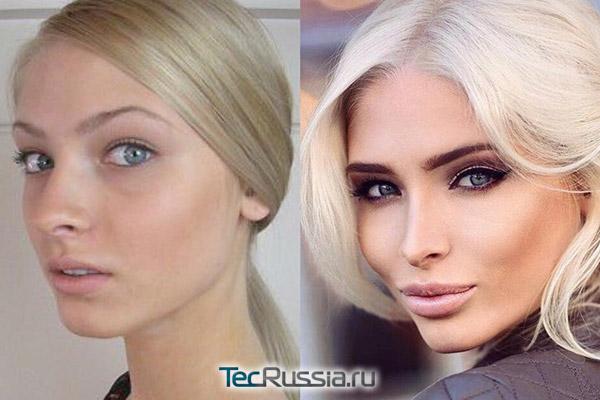 Алена Шишкова до и после пластических операций