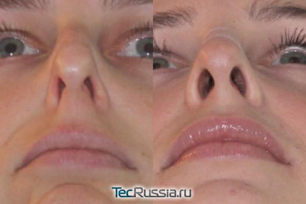 хирургическое расширение носовых ходов, фото до и после операции