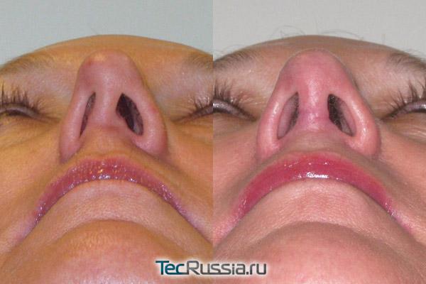 фото до и после септопластики носа