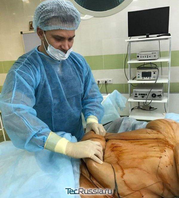 Восстановление после операции шунтирования