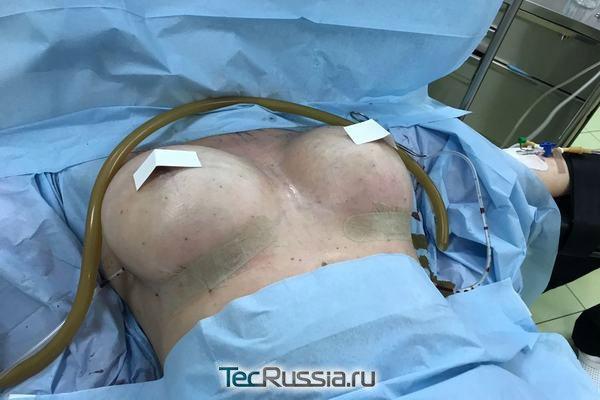 Можно ли кормить грудью на которой была операция