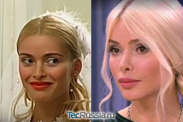 Алена до и после пластической операции