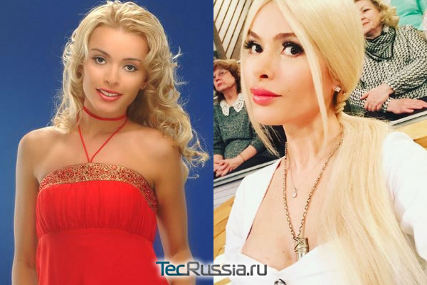Алена Кравец до и после пластики (в 2007 и 2017 году)