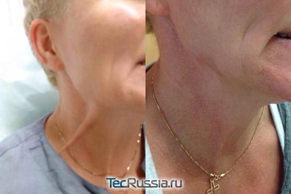 лечение спазмированной мышцы шеи ботулотоксином
