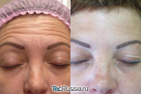 фото до и после удаления складок на лбу ботулотоксином