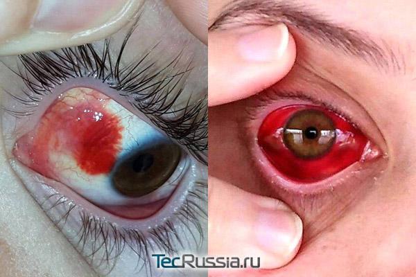 кровоизлияние на роговицу глаза как осложнение после блефаропластики