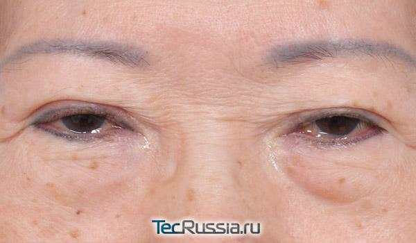 лазерной блефаропластики кожи вокруг глаз