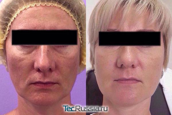 Лицо до и после глубокой подтяжки на аппарате Ulthera